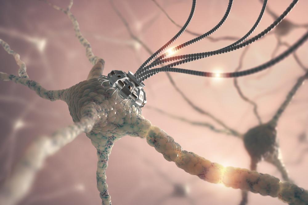 Sciences : Transhumanisme  Un implant pour moduler nos émotions